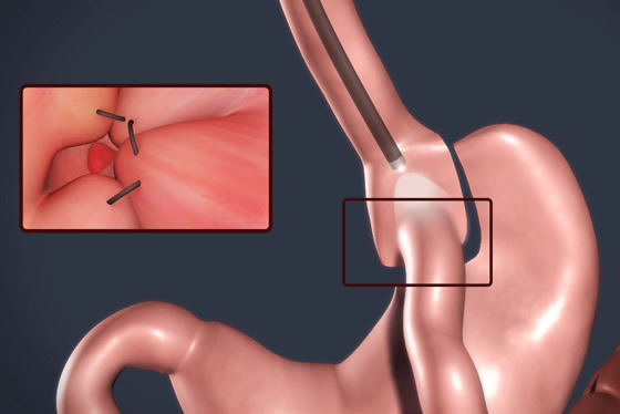 Clinica Renova Blefaroplastia