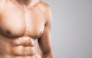 depilacion-laser-masculina-linea-alba-malaga