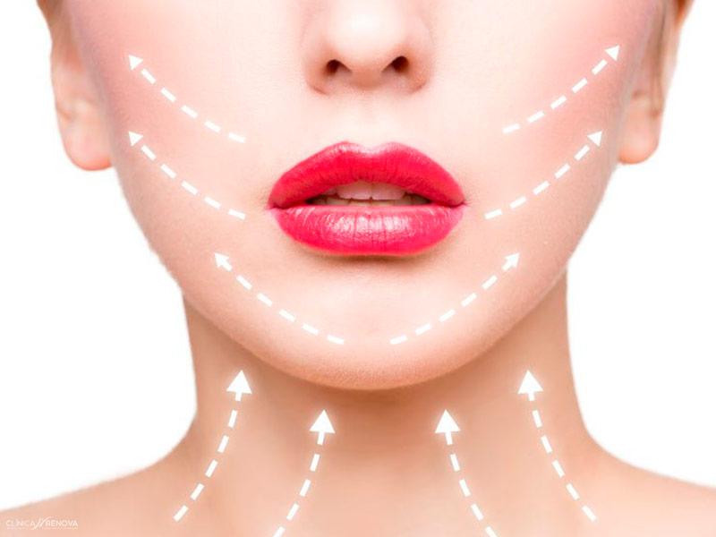 eliminacion-flacidez-facial-malaga-clinica-renova