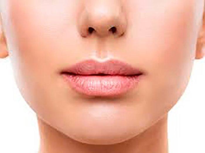 Restylane-Lip-Volume-Malaga-Clinica-Renova