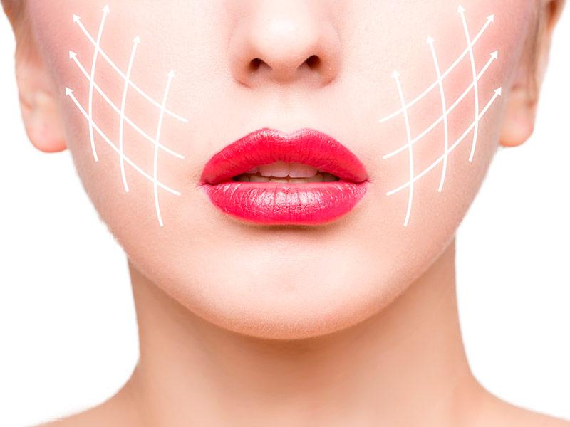 radiofrecuencia-facial-malaga-clinica-renova