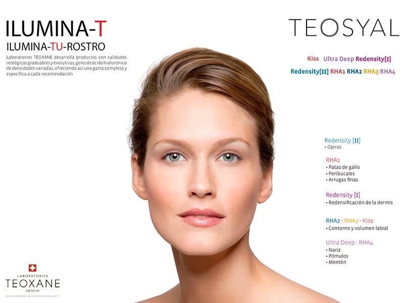 redensity-1-eliminacion-arrugas-malaga-clinica-renova