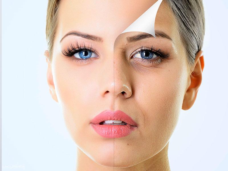 rejuvenecimiento-facial-microdermoabrasion-malaga-clinica-renova