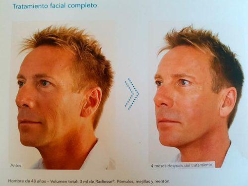 relleno-masculina-facial-malaga-clinica-renova