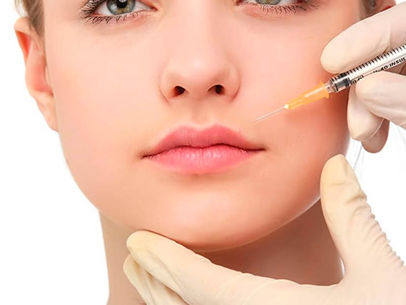 Revanesse-Kiss-aumento-de-labios-Malaga-Clinica-Renova-1